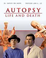 Autopsy Life and Death DVD set on Amazon.com